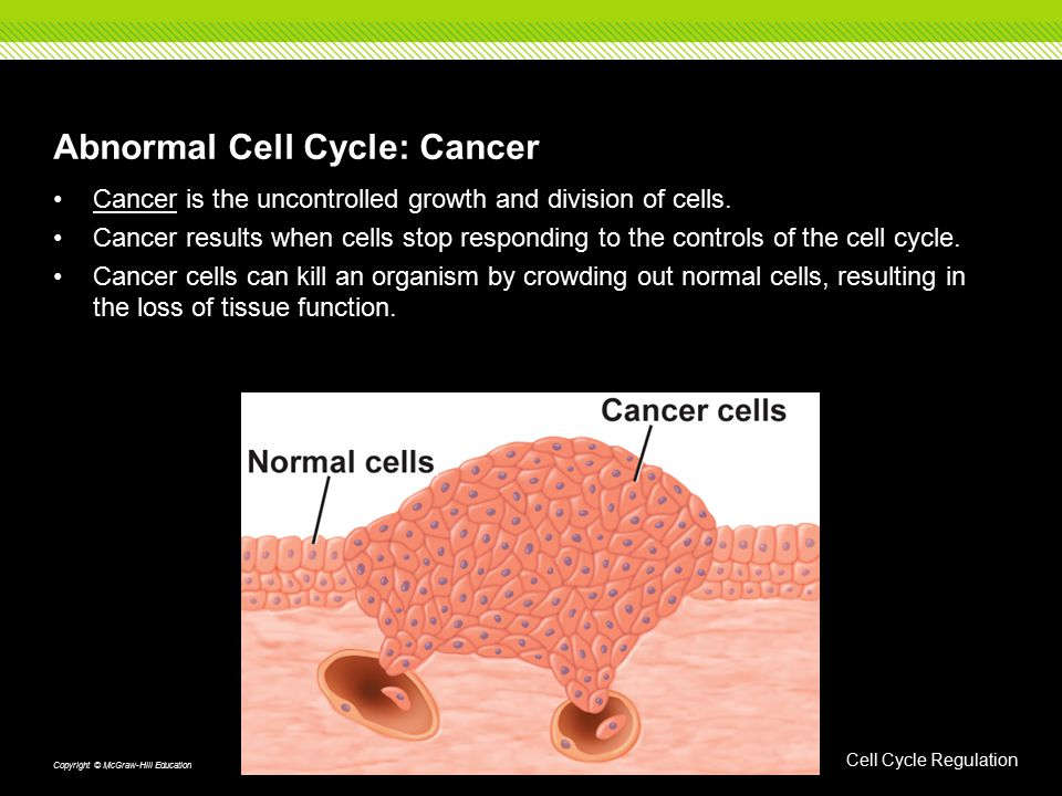 Abnormal Cell Cycle: Cancer Cancer is the uncontrolled growth and division of cells. Cancer results when cells stop responding to the controls of the