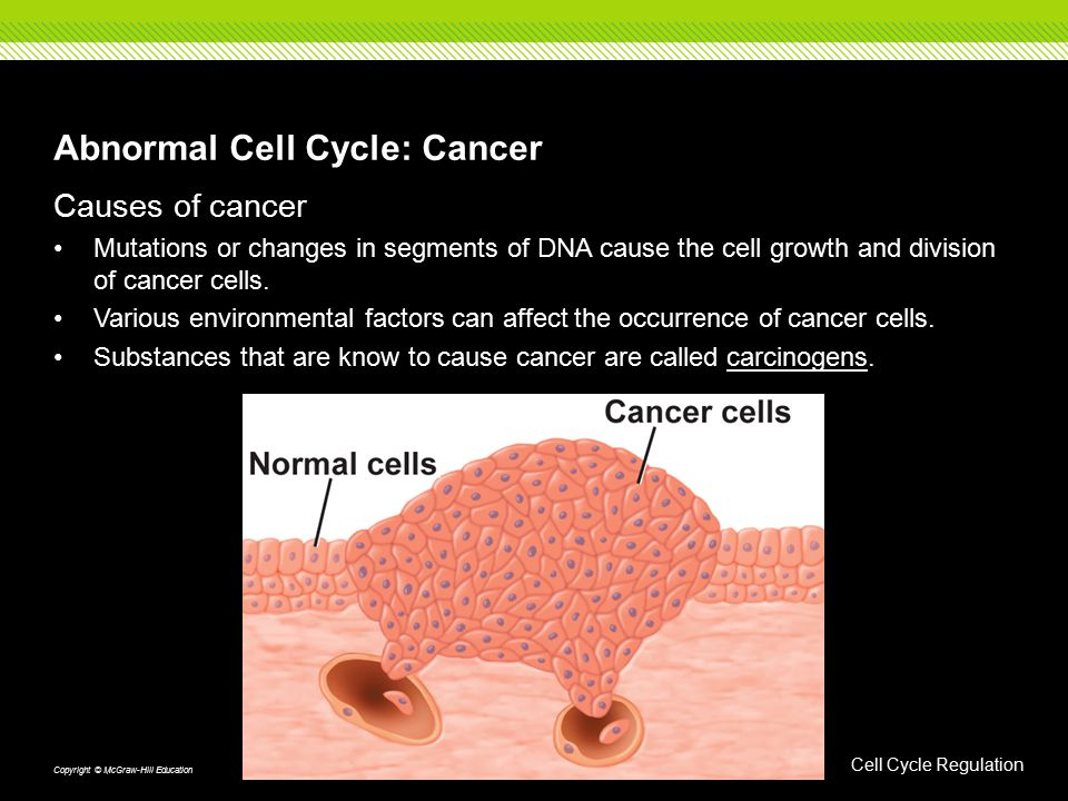 Abnormal Cell Cycle: Cancer Causes of cancer Mutations or changes in segments of DNA cause the cell growth and division of cancer cells. Various envir