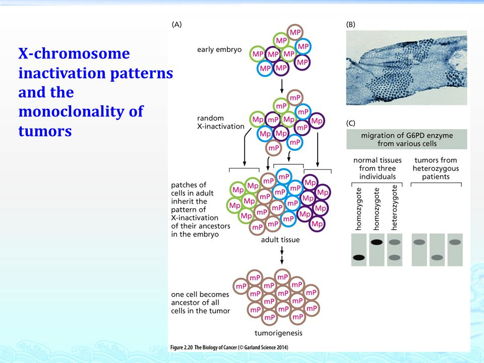 X-chromosome inactivation patterns and the monoclonality of tumors