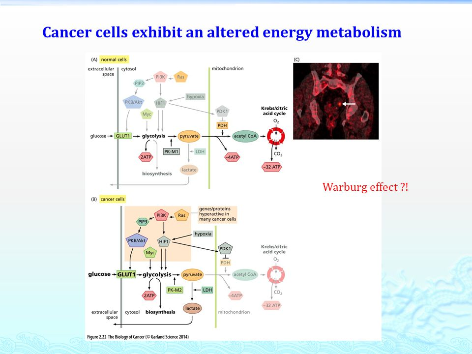 Cancer cells exhibit an altered energy metabolism Warburg effect !