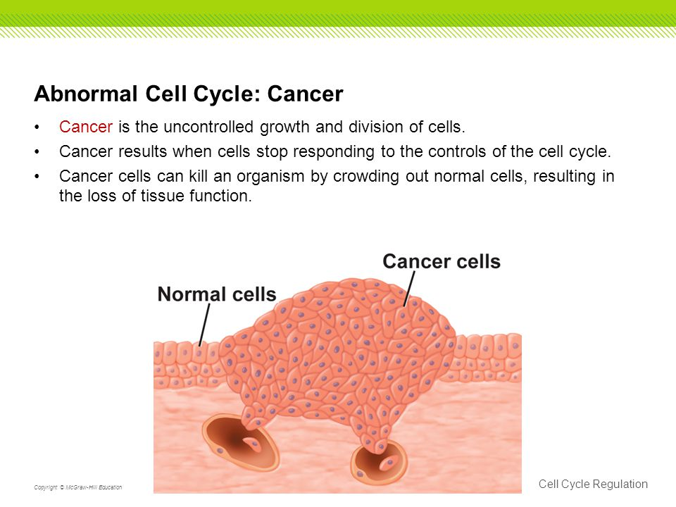 Abnormal Cell Cycle: Cancer Cancer is the uncontrolled growth and division of cells.
