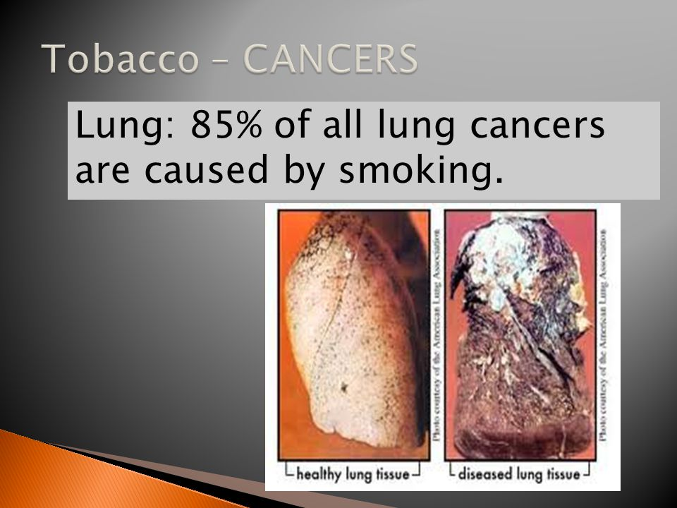 Lung: 85% of all lung cancers are caused by smoking.