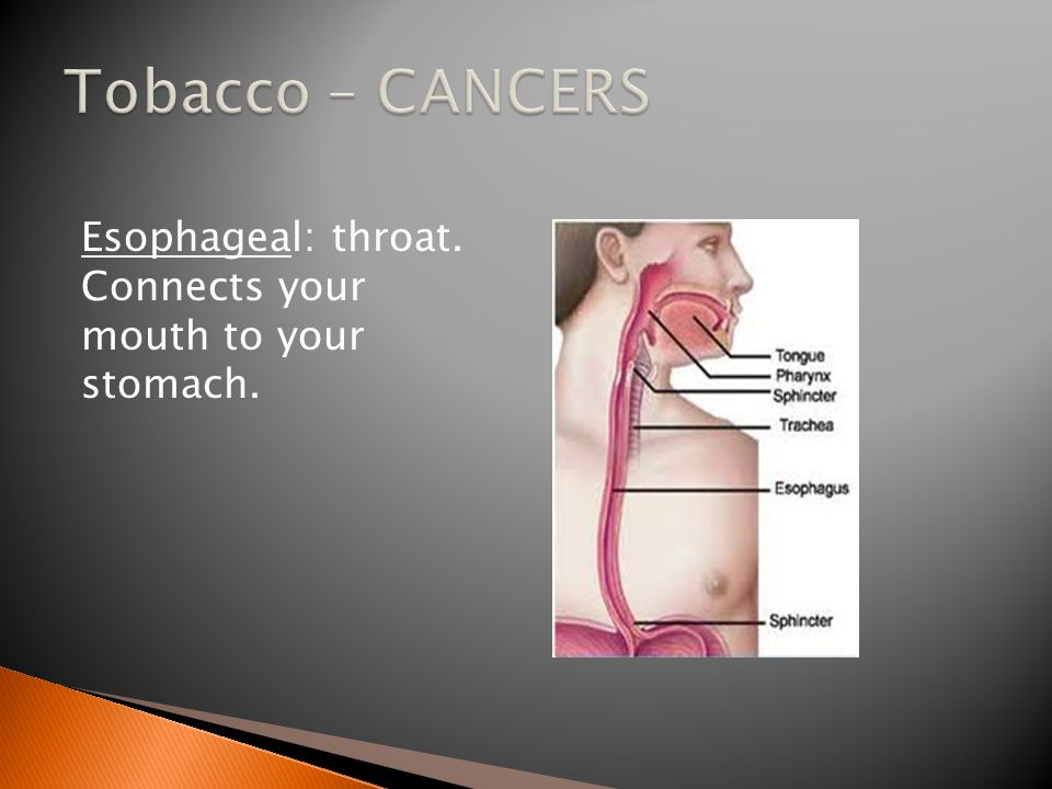 Esophageal: throat. Connects your mouth to your stomach.