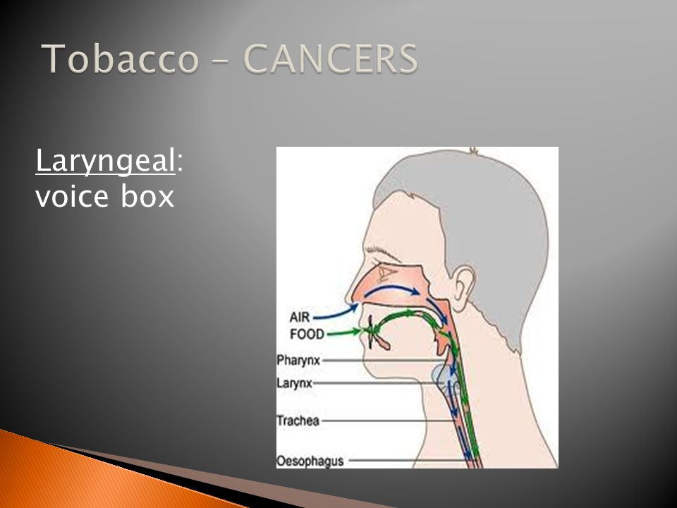 Laryngeal: voice box