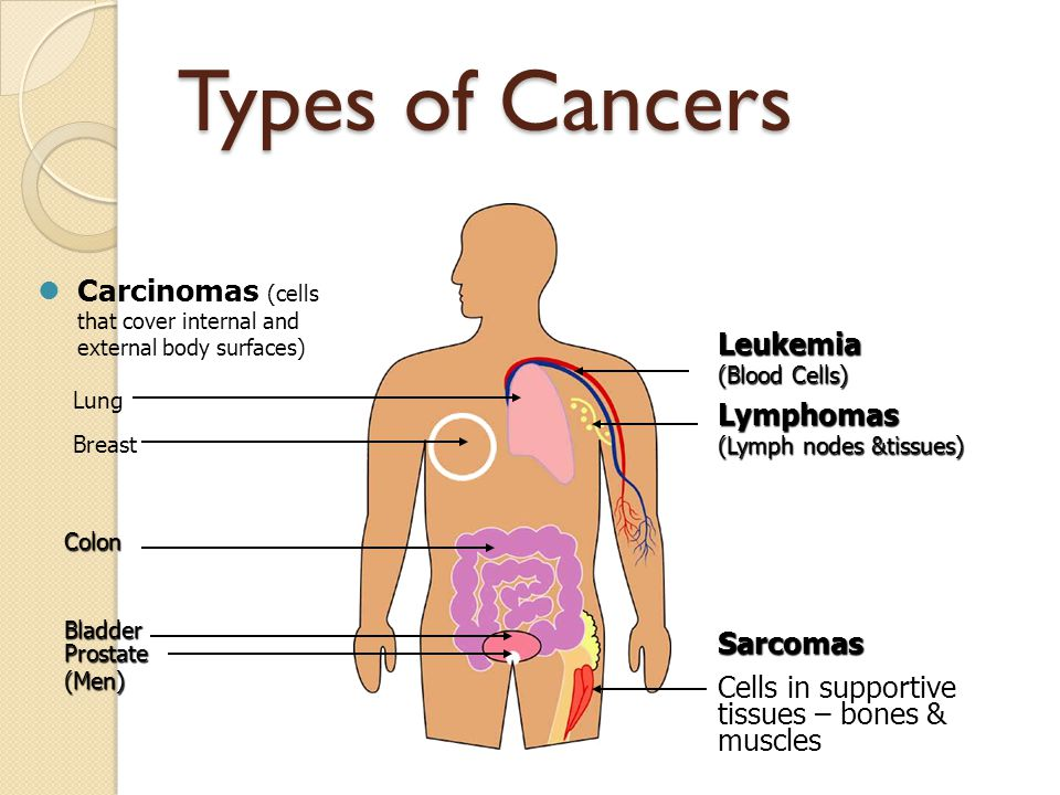 Signs and Symptoms of Cancer Sores that do not heal Unusual bleeding or discharge Lumps or thickening of breast or other parts of the body Indigestion or difficulty swallowing Recent change in wart or mole Persistent coughing or hoarseness Change in bowel habits or bladder functions