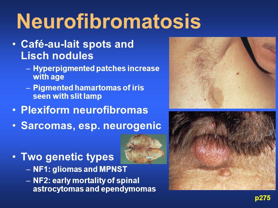 Neurofibromatosis Café-au-lait spots and Lisch nodules –Hyperpigmented patches increase with age –Pigmented hamartomas of iris seen with slit lamp Plexiform neurofibromas Sarcomas, esp.