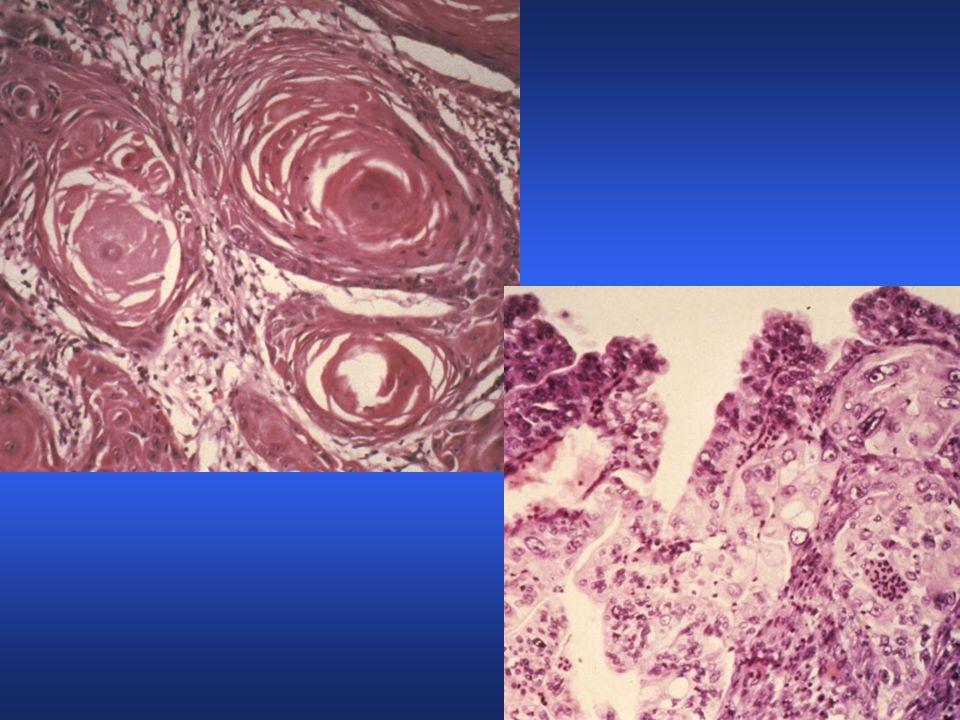 WD Squamous carcinoma pearls versus PD Gastric adenocarcinoma