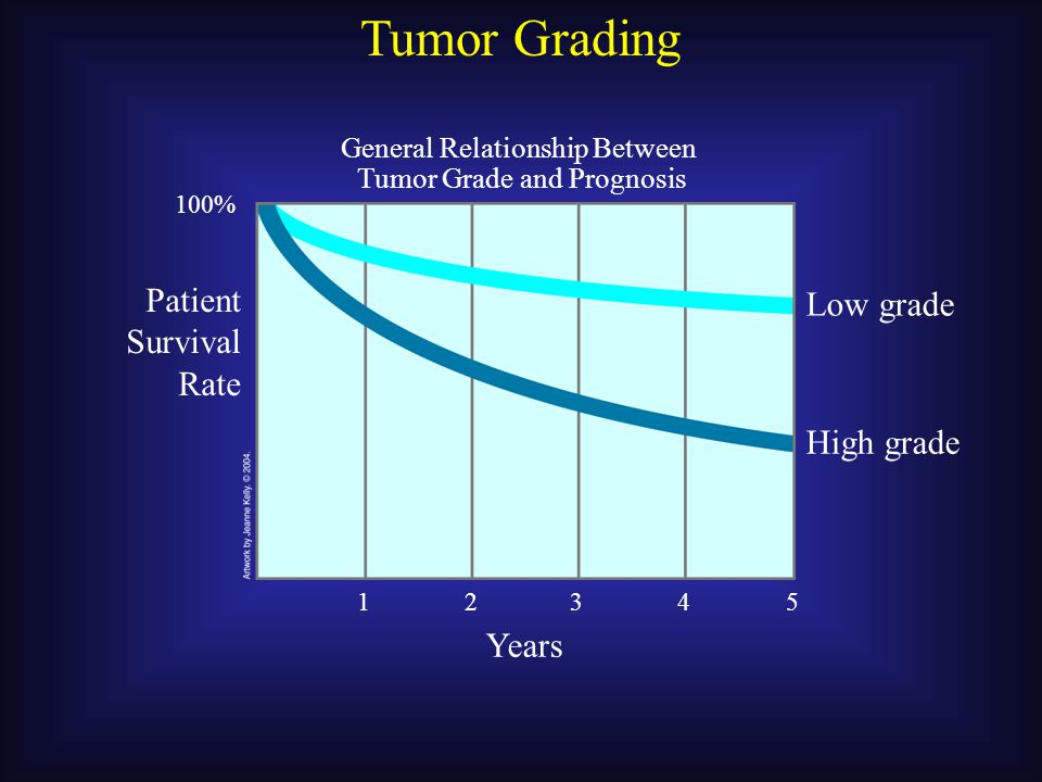 Tumor Staging Five-Year Survival Rates for Patients with Melanoma (by stage) Stage at Time of Initial Diagnosis 100% 50% IIIIII