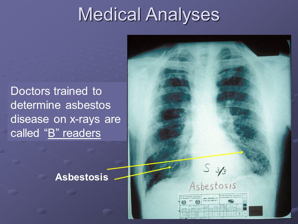 12 Medical Analyses Asbestosis Doctors trained to determine asbestos disease on x-rays are called B readers