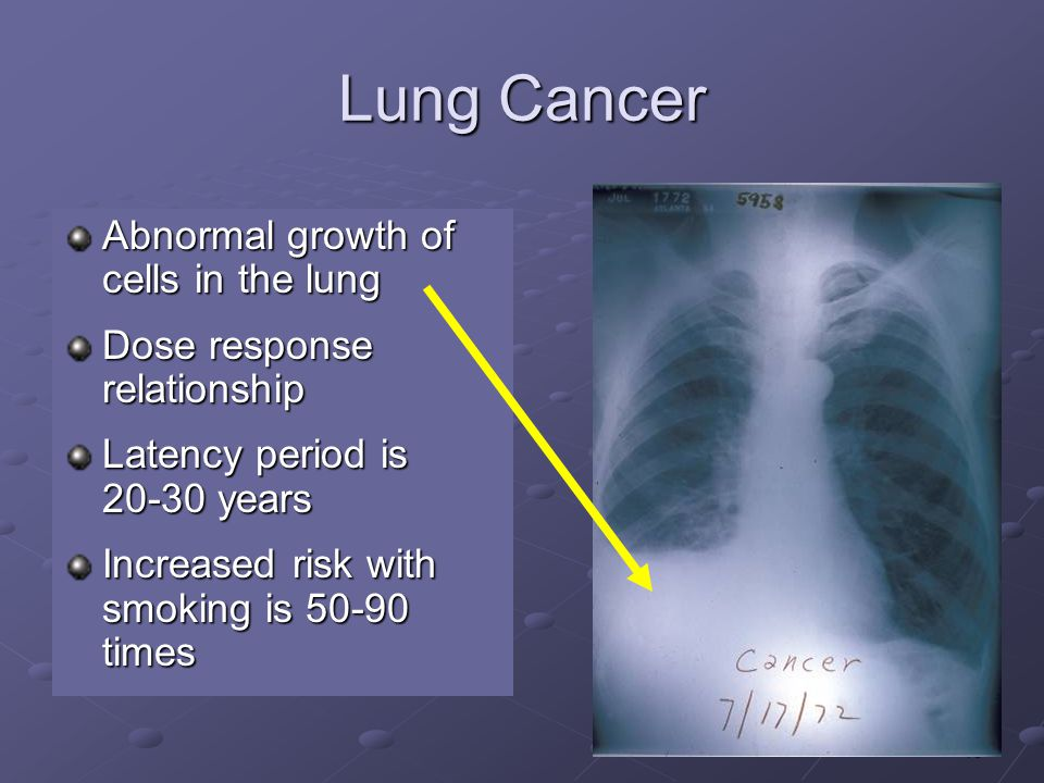 13 Lung Cancer Abnormal growth of cells in the lung Dose response relationship Latency period is 20-30 years Increased risk with smoking is 50-90 times
