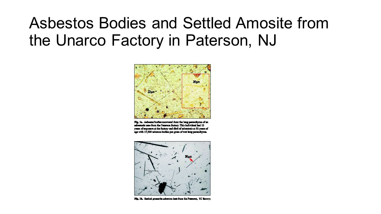 Asbestos Bodies and Settled Amosite from the Unarco Factory in Paterson, NJ
