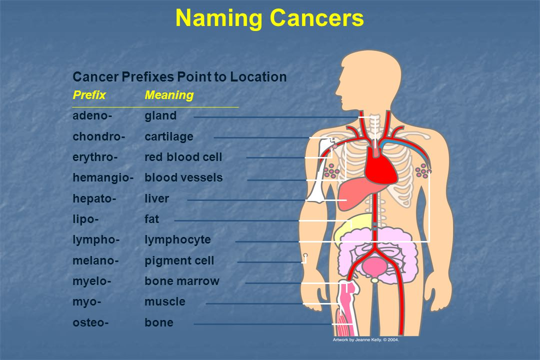 Different Kinds of Cancer Lung Breast (women) Colon Bladder Prostate (men) Some common sarcomas: Fat Bone Muscle Lymphomas: Lymph nodes Leukemias: Bloodstream Some common carcinomas:
