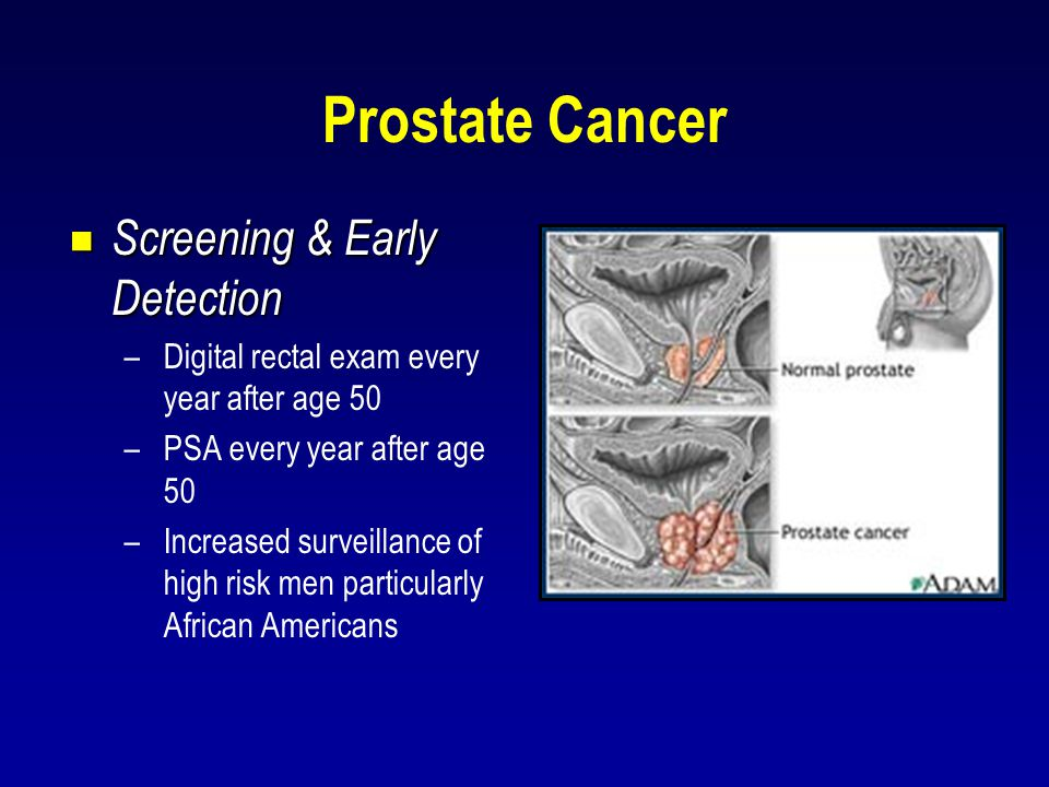 Prostate Cancer  Screening & Early Detection –Digital rectal exam every year after age 50 –PSA every year after age 50 –Increased surveillance of hig