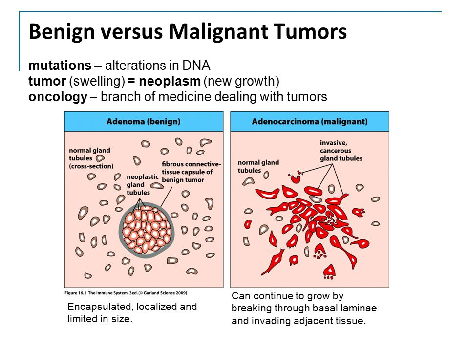 mutations – alterations in DNA tumor (swelling) = neoplasm (new growth) oncology – branch of medicine dealing with tumors Encapsulated, localized and