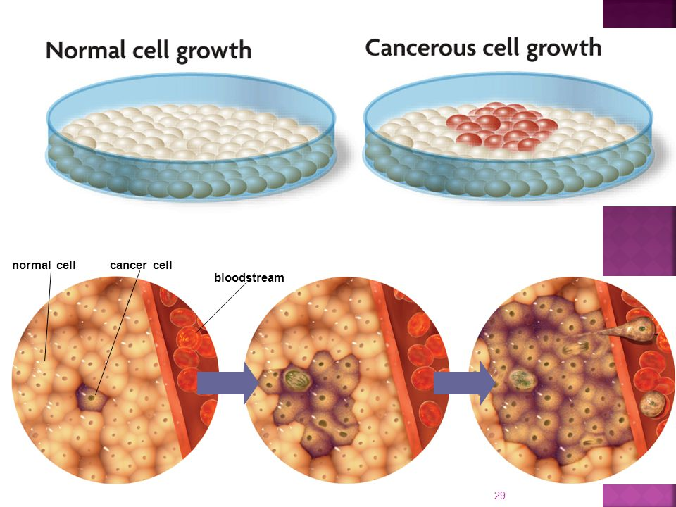 cancer cell bloodstream normal cell 29