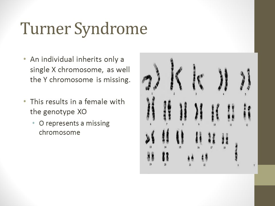 Turner Syndrome An individual inherits only a single X chromosome, as well the Y chromosome is missing. This results in a female with the genotype XO