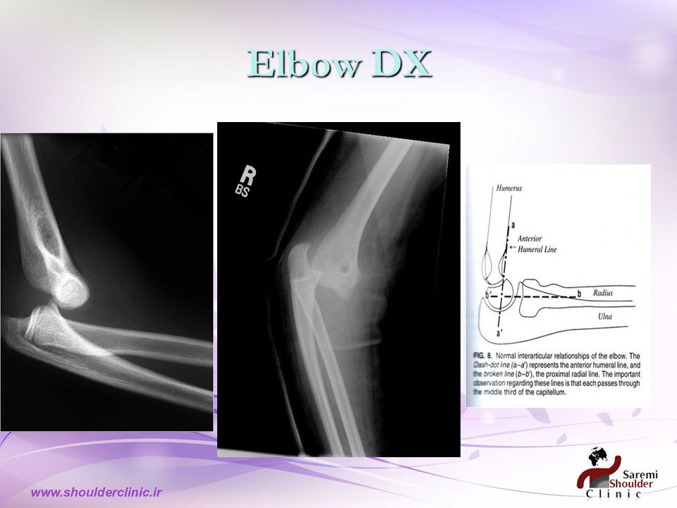Elbow DX