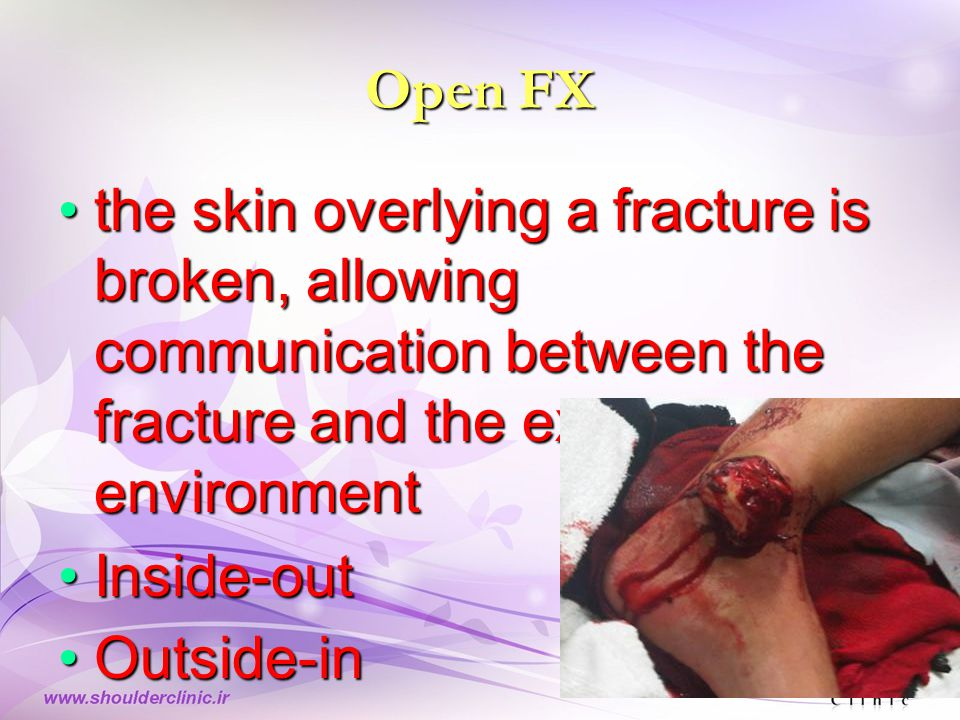 Open FX the skin overlying a fracture is broken, allowing communication between the fracture and the external environmentthe skin overlying a fracture is broken, allowing communication between the fracture and the external environment Inside-outInside-out Outside-inOutside-in