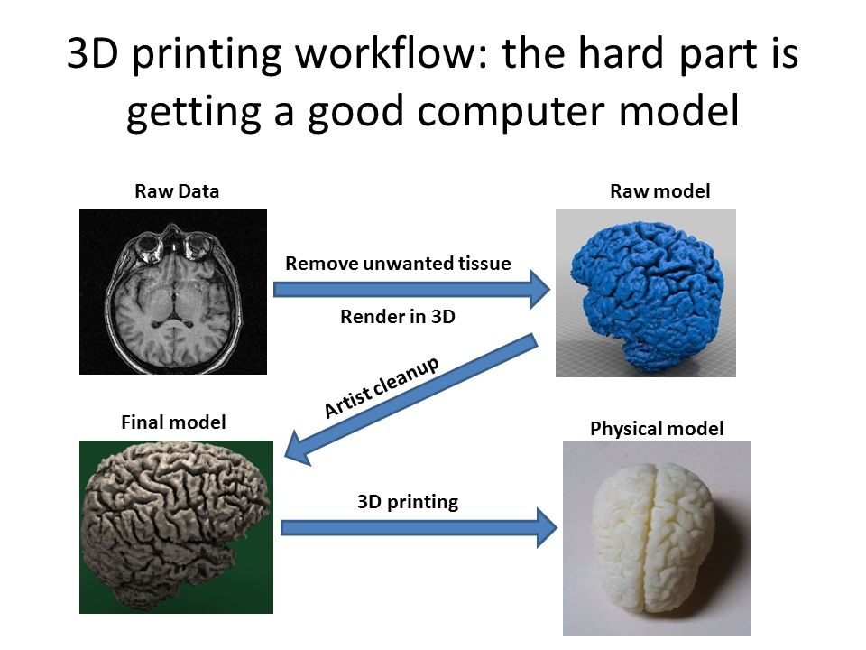 3D printing workflow: the hard part is getting a good computer model Raw Data Remove unwanted tissue Raw model Render in 3D Final model Artist cleanup 3D printing Physical model