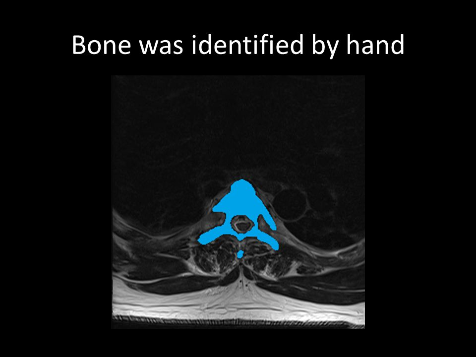 Bone was identified by hand