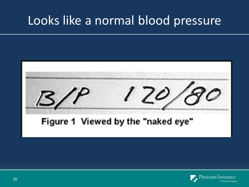 Looks like a normal blood pressure 35