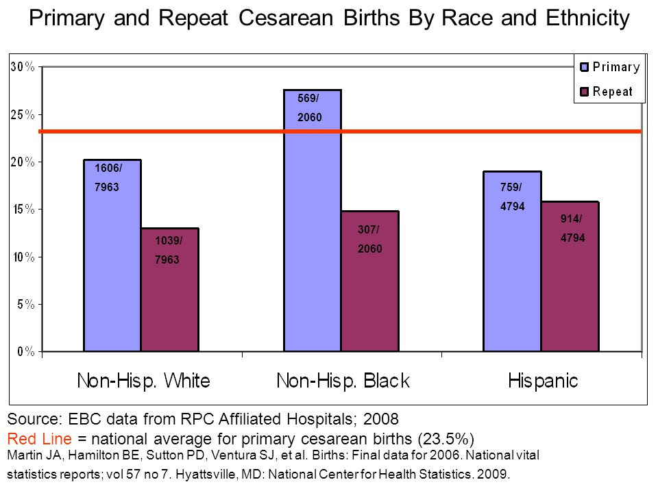 Primary and Repeat Cesarean Births By Race and Ethnicity 1606/ 7963 1039/ 7963 569/ 2060 307/ 2060 914/ 4794 759/ 4794 Source: EBC data from RPC Affil