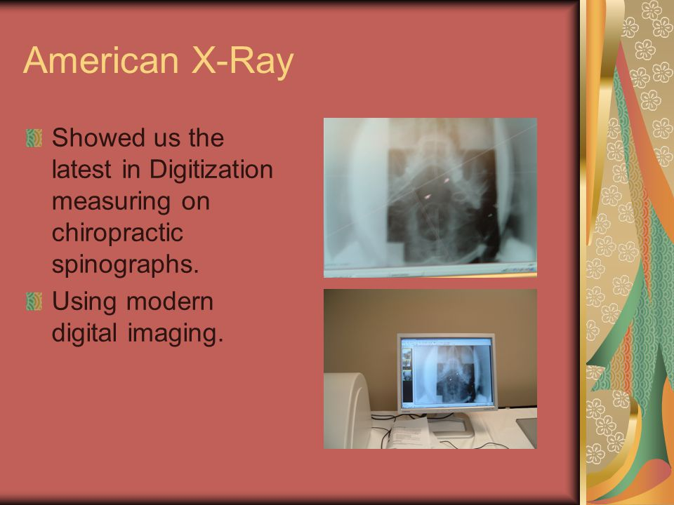 American X-Ray Showed us the latest in Digitization measuring on chiropractic spinographs.