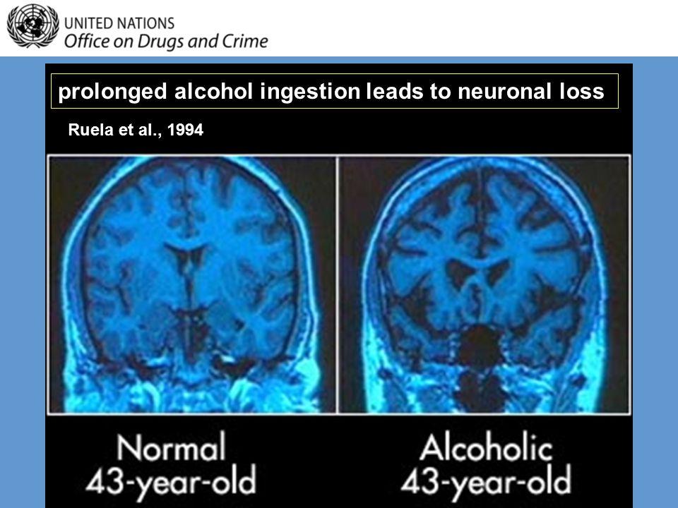 prolonged alcohol ingestion leads to neuronal loss Ruela et al., 1994