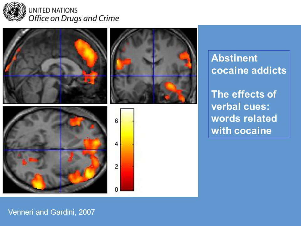 Abstinent cocaine addicts The effects of verbal cues: words related with cocaine Venneri and Gardini, 2007