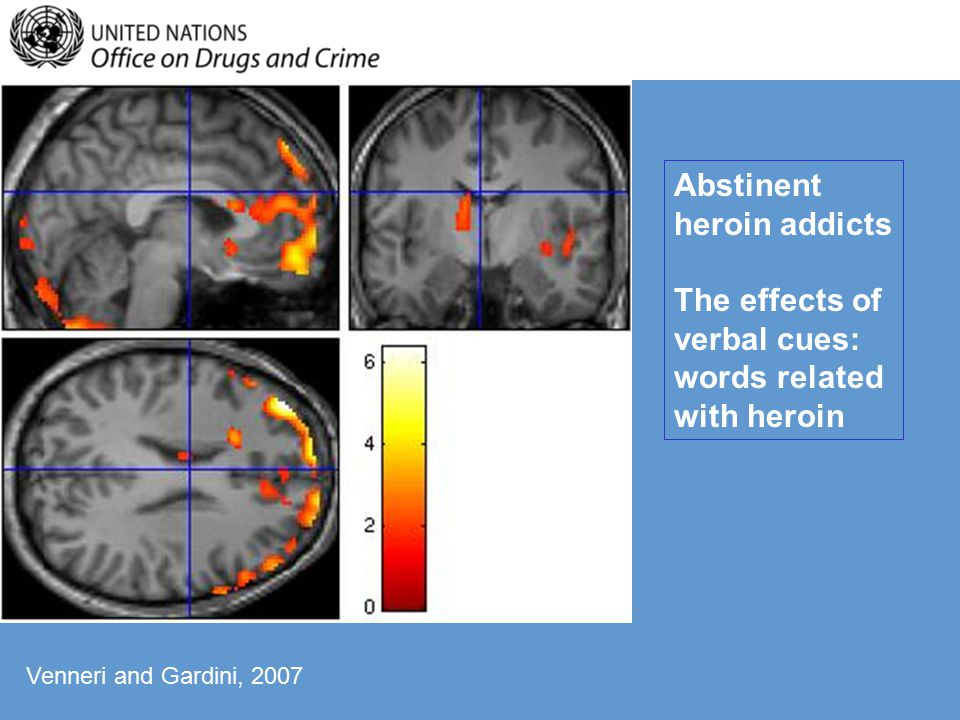 Abstinent heroin addicts The effects of verbal cues: words related with heroin Venneri and Gardini, 2007