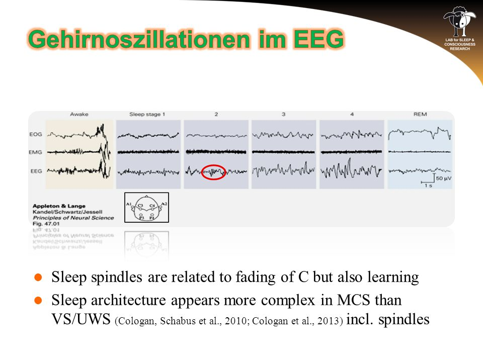 Sleep spindles are related to fading of C but also learning Sleep architecture appears more complex in MCS than VS/UWS (Cologan, Schabus et al., 2010; Cologan et al., 2013) incl.