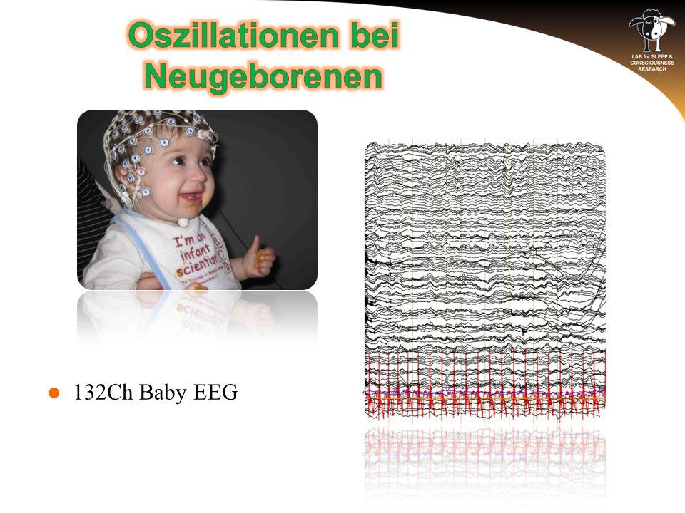 132Ch Baby EEG