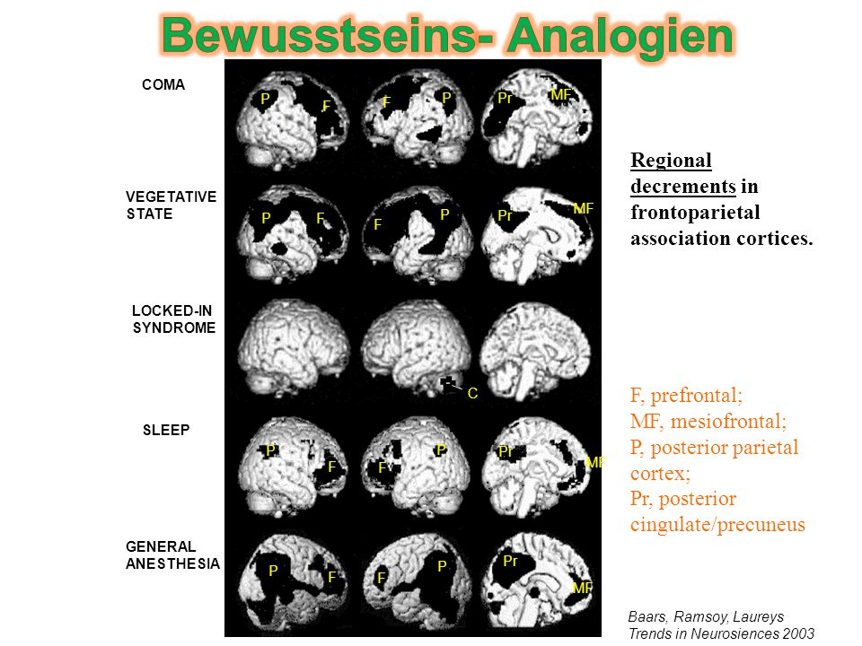 VEGETATIVE STATE COMA LOCKED-IN SYNDROME SLEEP GENERAL ANESTHESIA P P P P P P P P F F F F F F F F Pr MF C Baars, Ramsoy, Laureys Trends in Neurosiences 2003 F, prefrontal; MF, mesiofrontal; P, posterior parietal cortex; Pr, posterior cingulate/precuneus Regional decrements in frontoparietal association cortices.