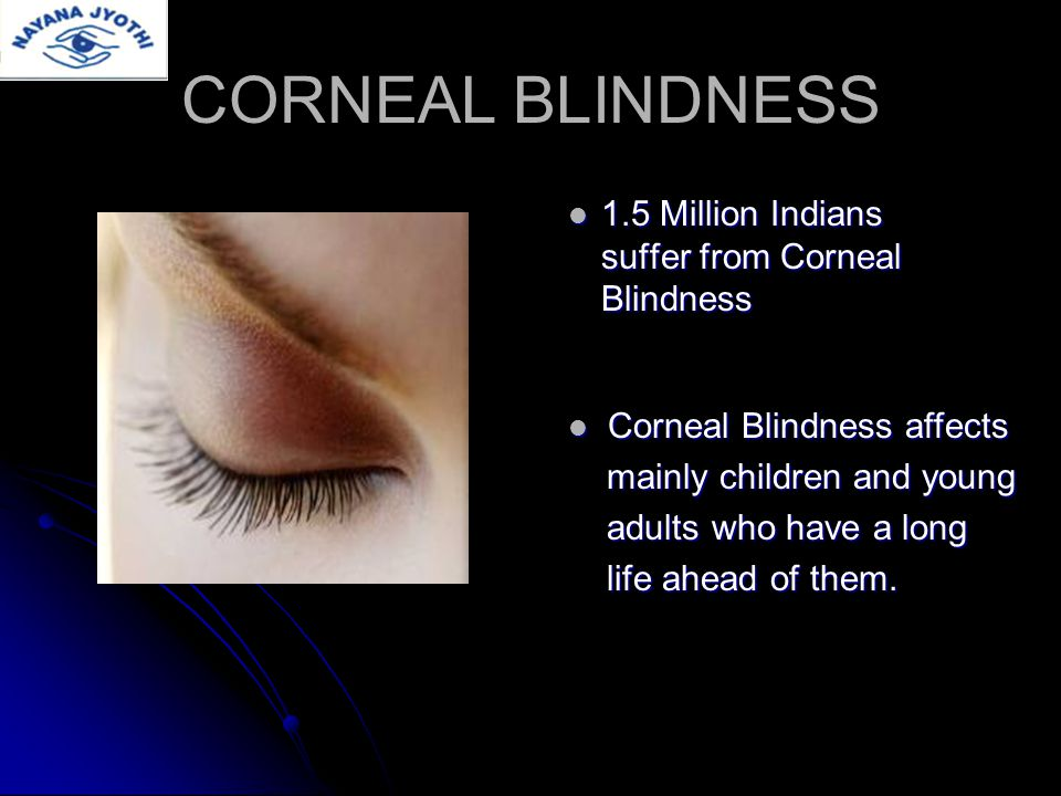 WINDOW TO THE WORLD Cornea is the clear, transparent, tissue covering the front of the eye.