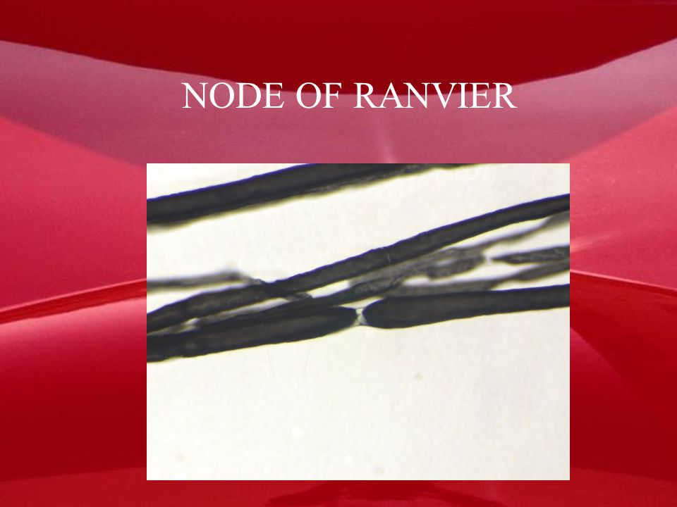 NODE OF RANVIER