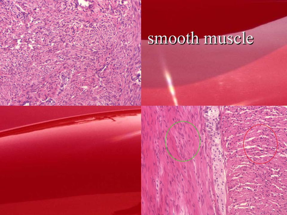 Smooth muscle Dense Regular CT