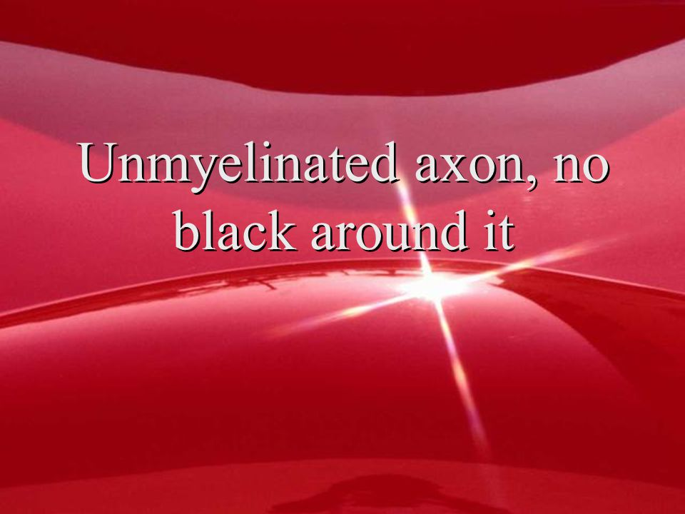 Unmyelinated axon, no black around it