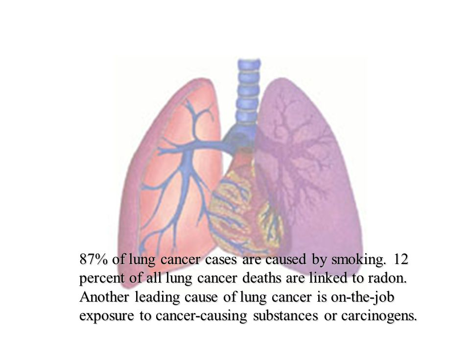 87% of lung cancer cases are caused by smoking. 12 percent of all lung cancer deaths are linked to radon. Another leading cause of lung cancer is on-t