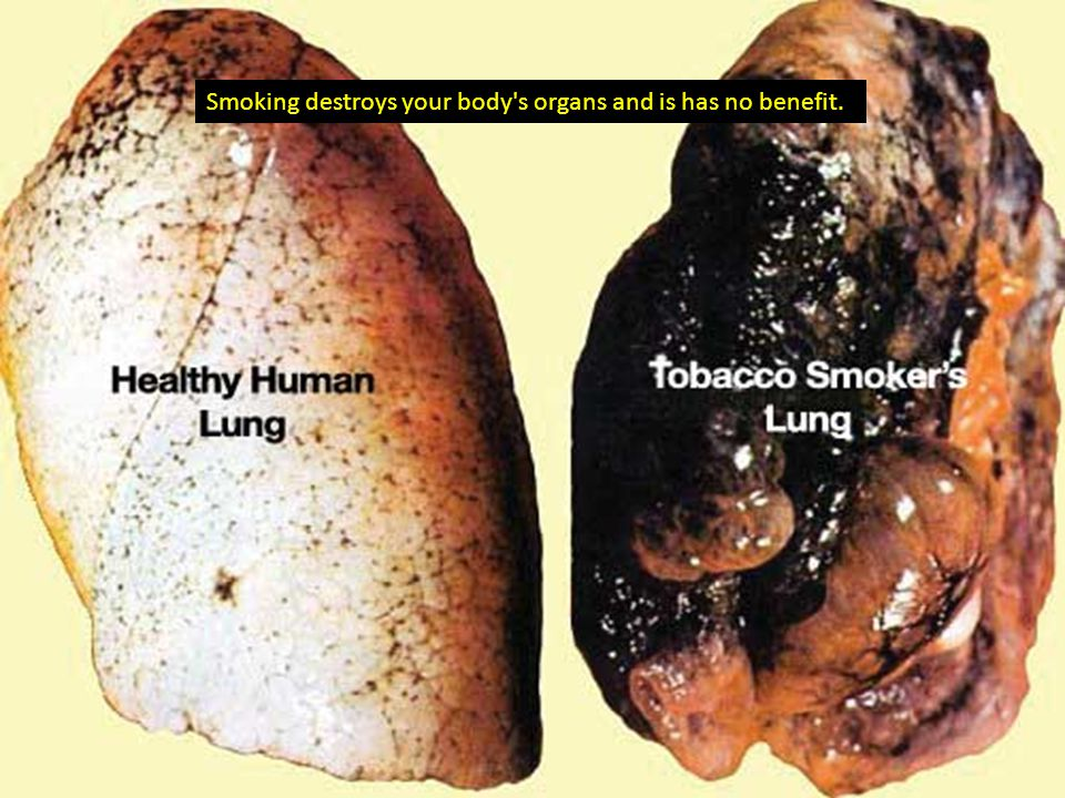 Smoking destroys your body s organs and is has no benefit.