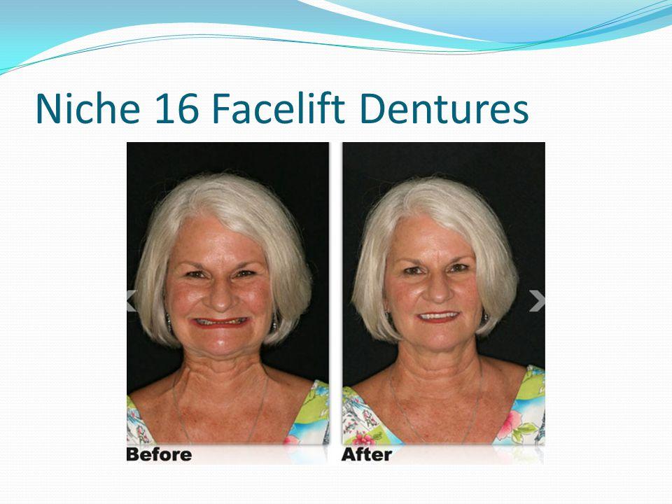 Niche 16 Facelift Dentures