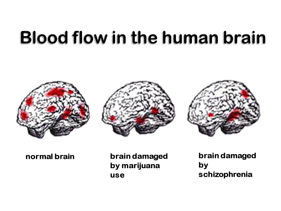 Blood flow in the human brain normal brain brain damaged by marijuana use brain damaged by schizophrenia