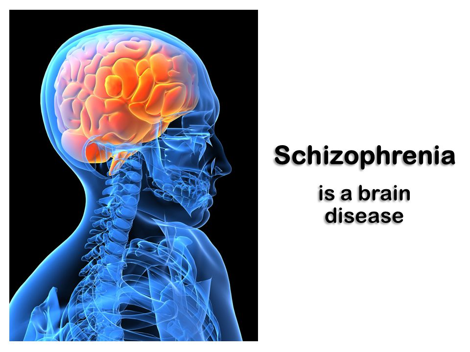 Schizophrenia is a brain disease
