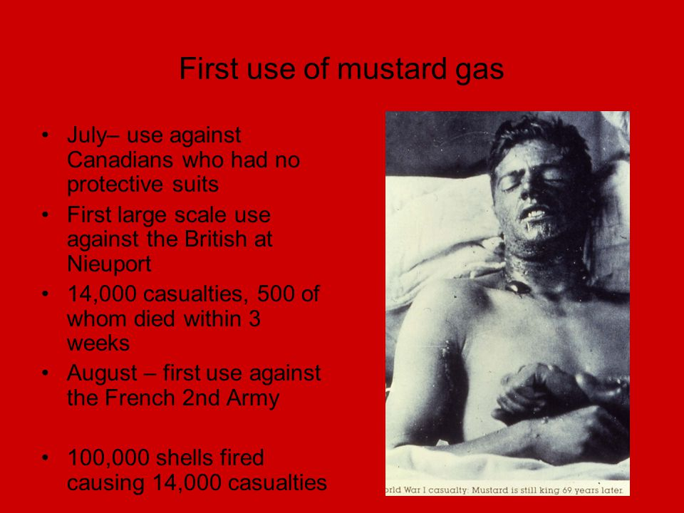 First use of mustard gas July– use against Canadians who had no protective suits First large scale use against the British at Nieuport 14,000 casualti