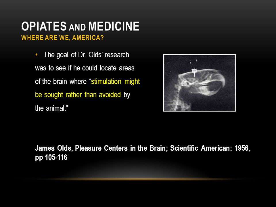 """OPIATES AND MEDICINE WHERE ARE WE, AMERICA? The goal of Dr. Olds' research was to see if he could locate areas of the brain where """"stimulation might b"""