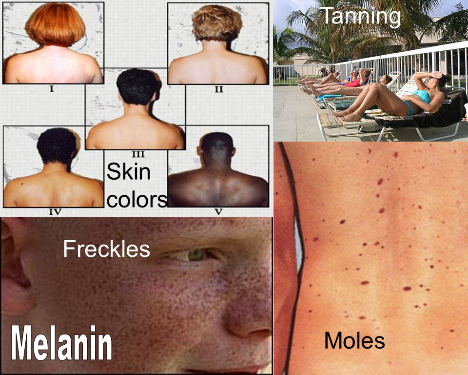 Skin colors Freckles Moles Tanning
