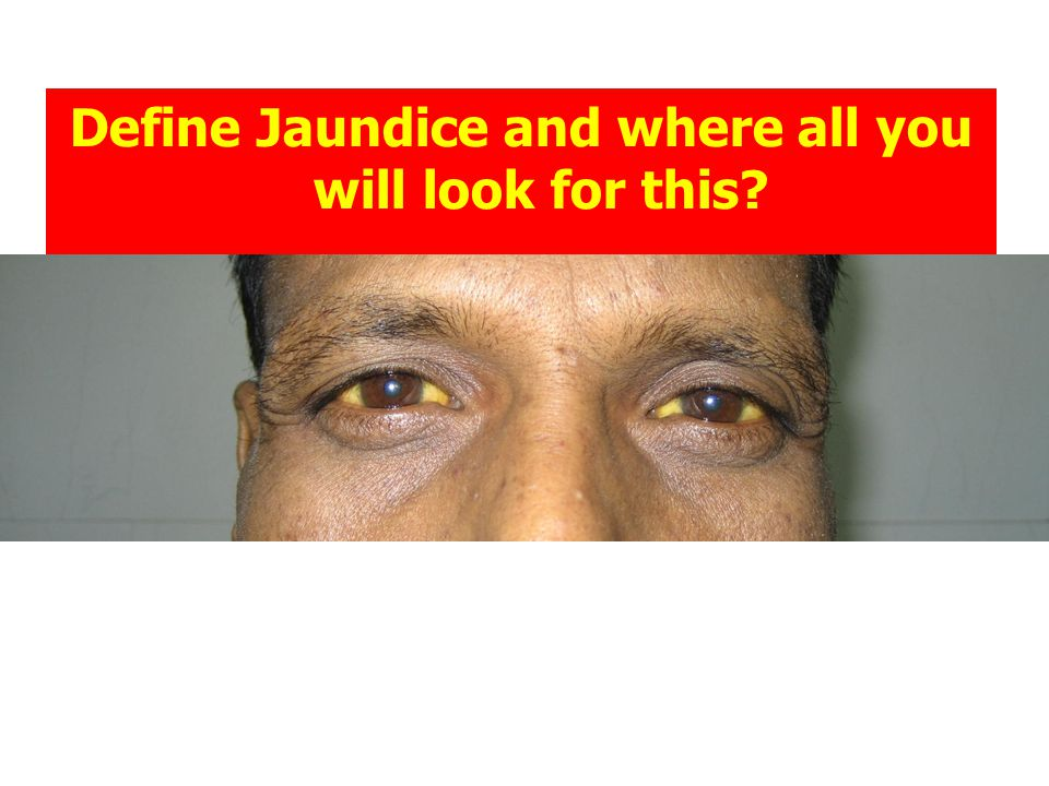 Define Jaundice and where all you will look for this?