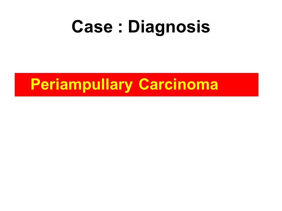 Case : Diagnosis Periampullary Carcinoma