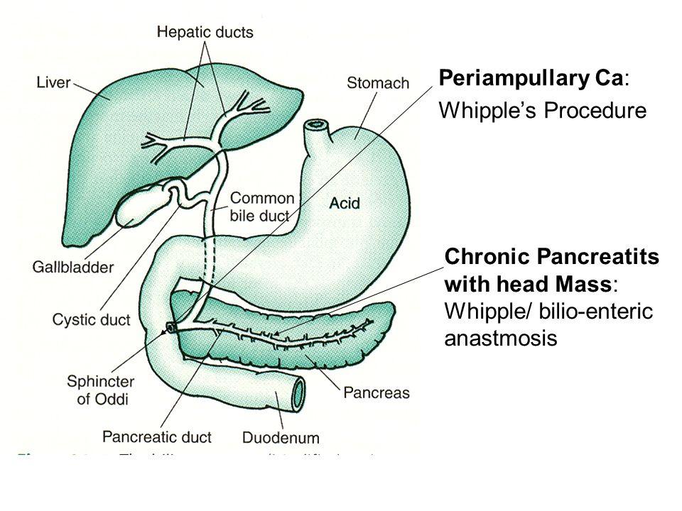Periampullary Ca: Whipple's Procedure Chronic Pancreatits with head Mass: Whipple/ bilio-enteric anastmosis