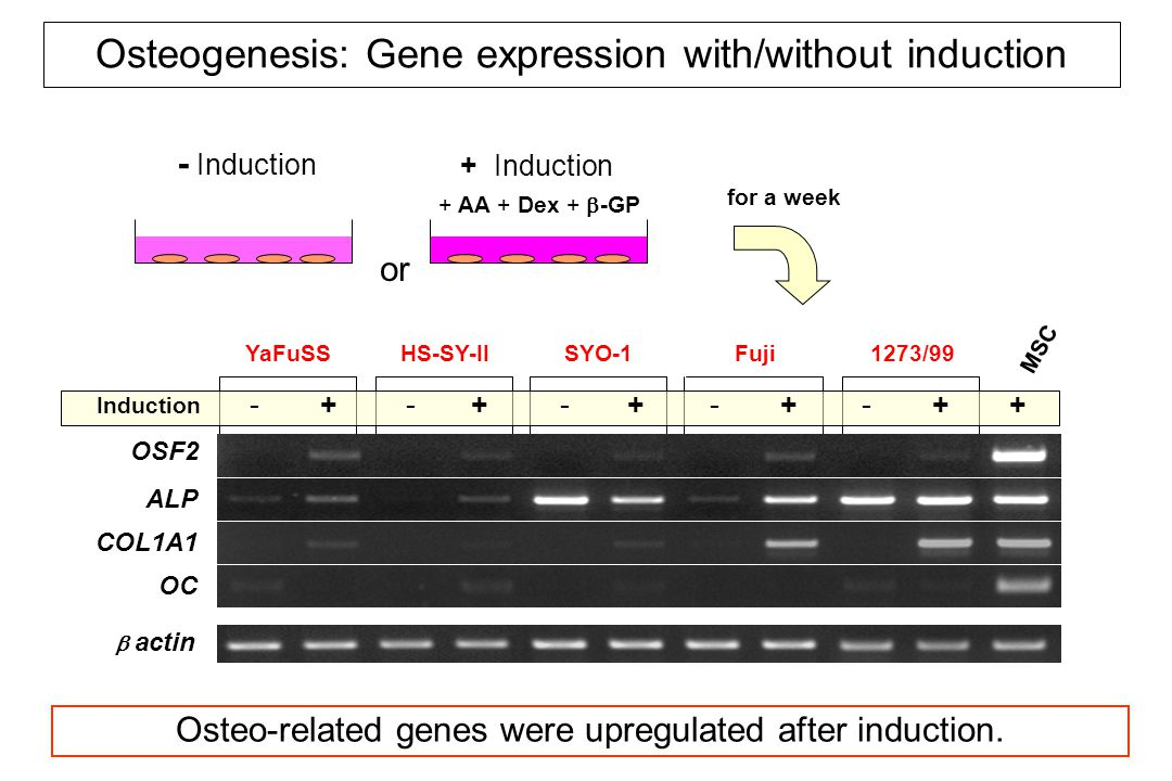  actin ALP OC OSF2 COL1A1 Osteogenesis: Gene expression with/without induction - + YaFuSS - + HS-SY-II - + SYO-1 - + Fuji - + 1273/99 MSC Induction + Osteo-related genes were upregulated after induction.