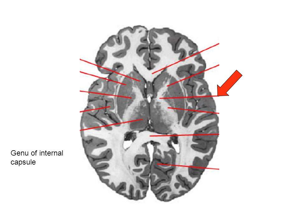 Genu of internal capsule
